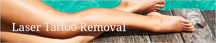 Laser Tattoo Removal at Virginia Street Dermatology